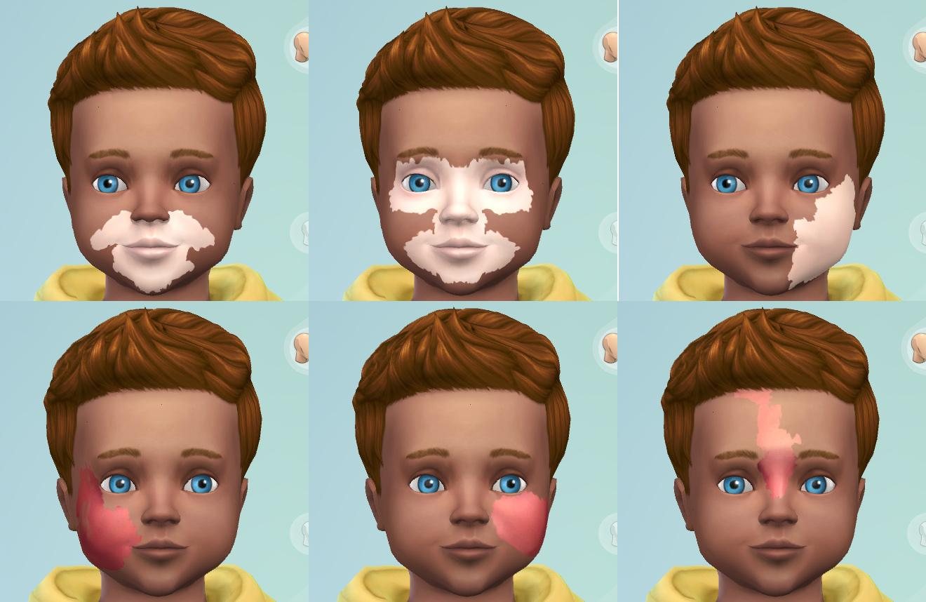 Port Wine Stain & Vitiligo Facial Marks for Toddlers