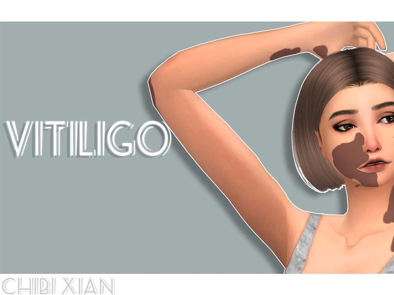 Chibi Xian - Vitiligo