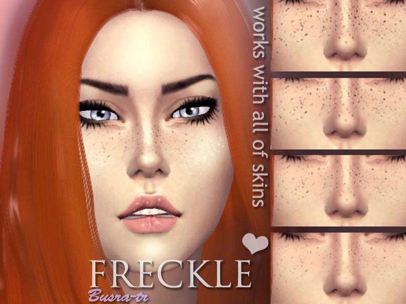 FreckleX