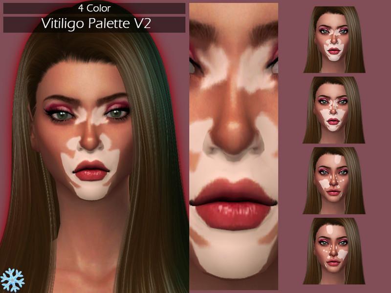 LMCS Vitiligo Palette V2
