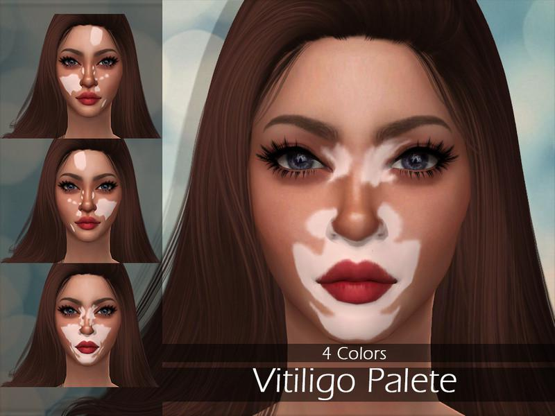 LMCS Vitiligo Palette
