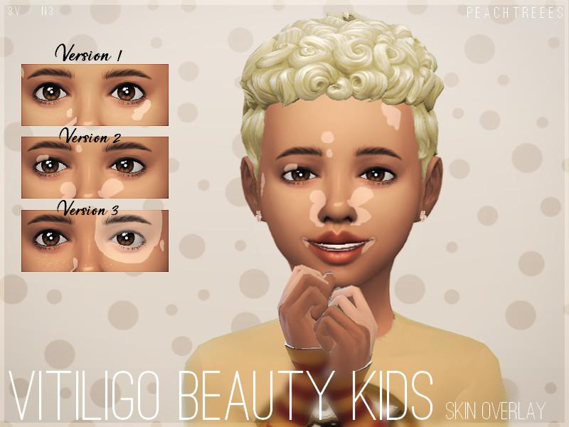 Vitiligo Beauty Skin Overlay KIDS N3