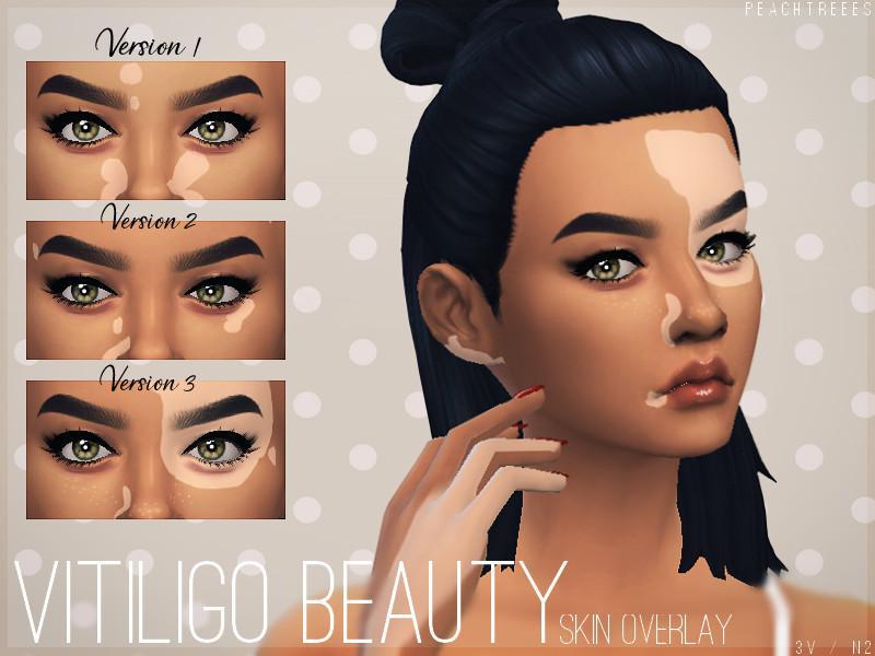 Vitiligo Beauty Skin Overlay N2