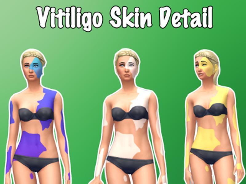 Vitiligo Skin Detail