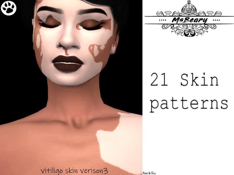 Vitiligo V3